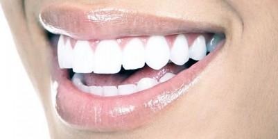 Natuurlijke oplossingen voor witte tanden