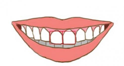 vierkante tanden