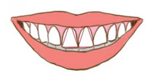 driehoekige tanden