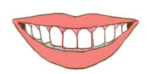 rechthoekige tanden