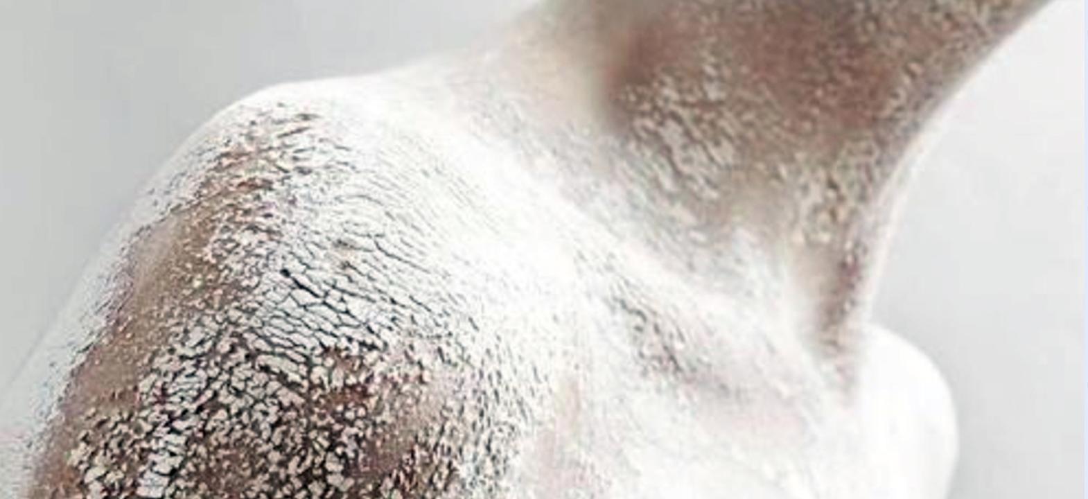 uitgedroogde huid