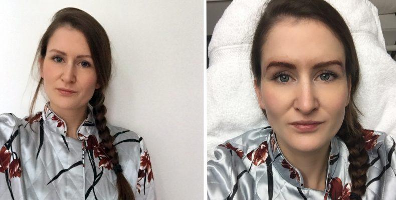 Voor en tijdens de derde behandeling