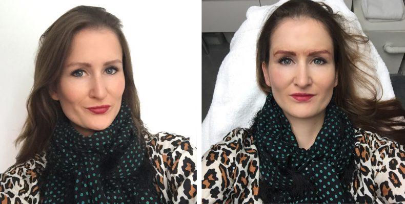 Voor en tijdens de tweede behandeling