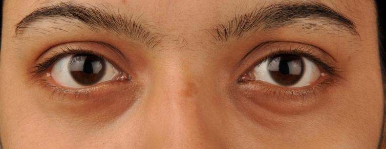 3 onverwachtse oorzaken van gezwollen oogleden