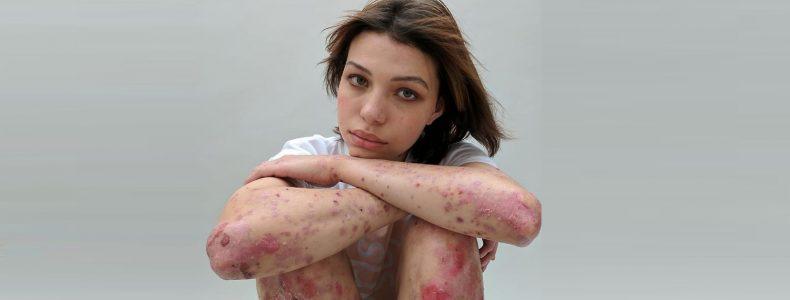 Vrouwen onthullen hun littekens met het verhaal erachter