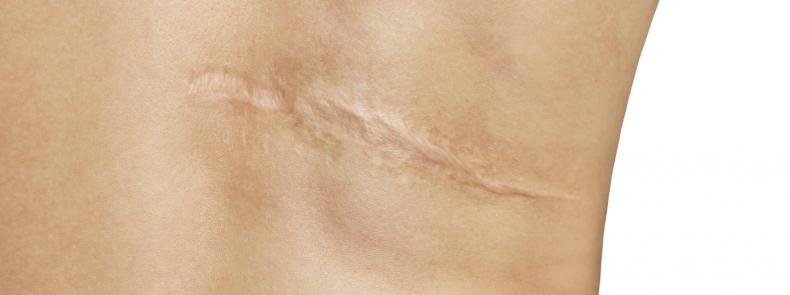 Kun je littekens beïnvloeden?