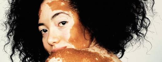 Kijk even naar deze adembenemende vitiligo fotoserie