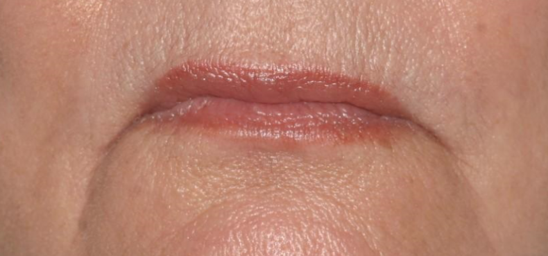 Dit is hoe je er ouder uit ziet door je lippen