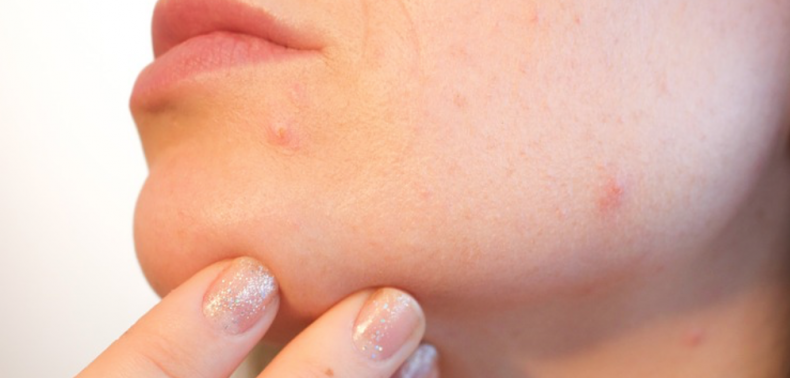 Dit is hoe je vervelende acne littekens kunt vervagen