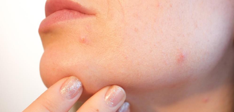 hoe littekens weg krijgen