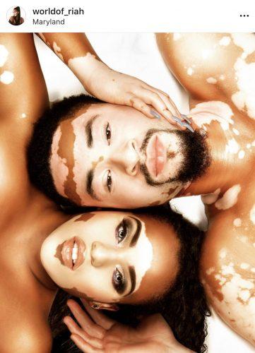 #SkinPositivity