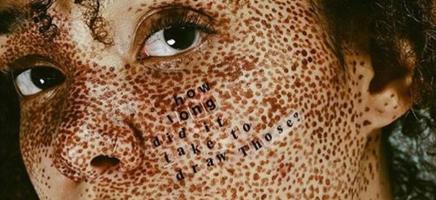 Imperfectie is hót dankzij #SkinPositivity