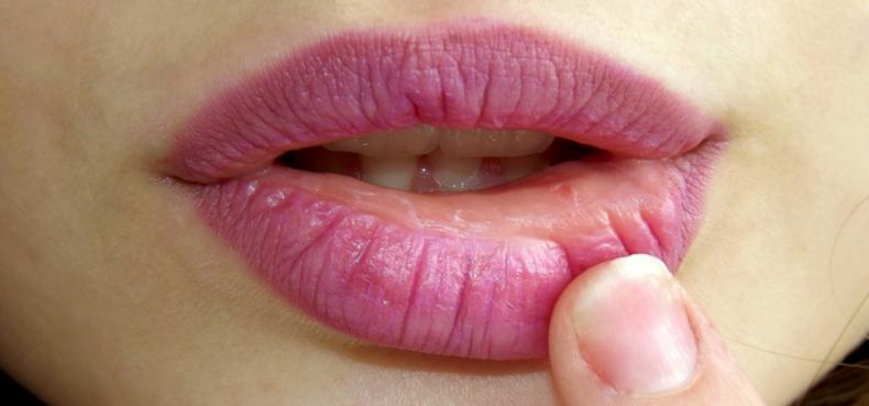 Zwellen je lippen regelmatig op na lip fillers met hyaluronuur?