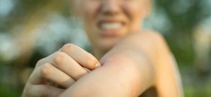 Natuurlijk muggen bestrijden 101, zo word je die kleine zzzoem...
